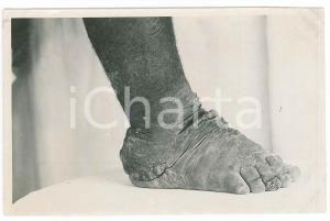 1930 ca C. ZAGOURSKI «L'Afrique qui disparaît» Maladies tropicales - 163A